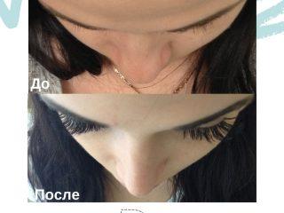 after-before-slide