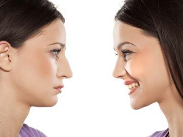 Реконструкция носа