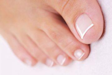 Лечение «вросшего ногтя» радикальными методами