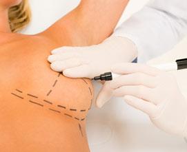 Реконструкция груди после онкохирургии