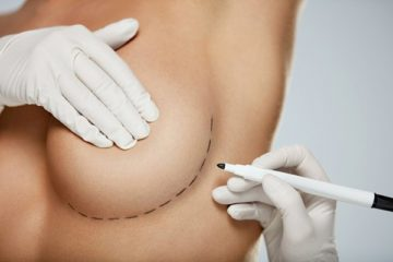 Повторные операции на груди с целью коррекции