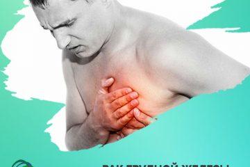Рак грудной железы у мужчины
